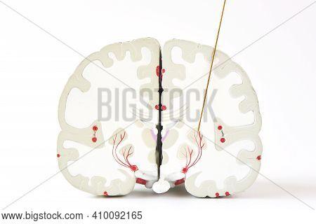Microelectrode Recording Of Globus Pallidus  Interna Or Gpi In Parkinson;s Disease Surgery. Brain Mo