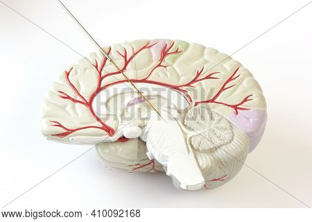 Miicroelectrode Recording On The Brain Model. Concept Of Brain Recording In Subthalamic Nucleus For
