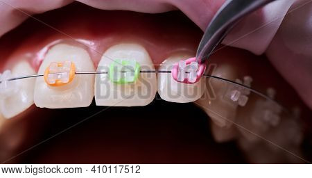 Macro Snapshot Of Dental Procedure, Process Of Attaching Colorful Rubber Bands To White Ceramic Brac