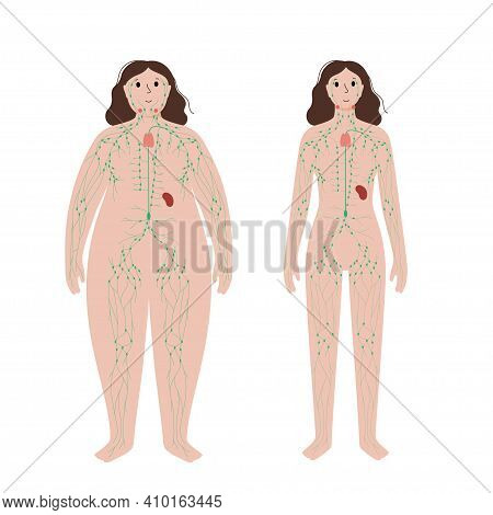 Lymphatic System Concept. Lymph Nodes And Ducts In Obese And Normal Female Silhouette. Lymphatic Ves