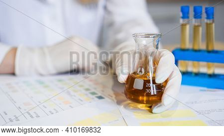 Woman Making Urine Test With Ph Material In Laboratory. Female Hands In Gloves And A Flask Of Urine