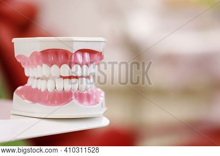 Closeup Model Of A Human Jaw With White Teeth. Jaw In Dentistry. Copy Space. Clean Denture, Model Of