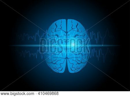 Illustration Of Human Brain With Focal Seizure Showing Abnormal Sharp Wave On Electroencephalography
