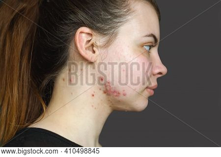 Red Pimples On The Skin Of A Young Girl Close-up. Acne On The Face Of A Teenage Girl.  Problems And