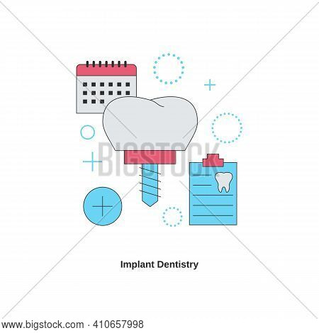Dental Services Concept. Implant Dentistry. Vector Illustration.