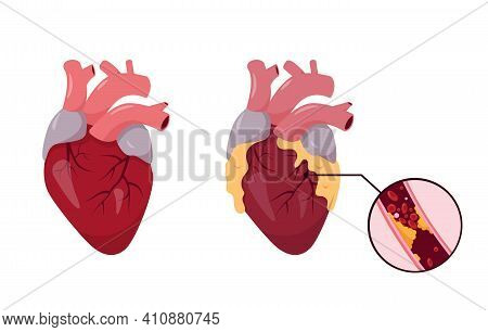 Healthy And Unhealthy Human Heart. Ischemic Disease. Blocked Coronary Artery With Atherosclerosis. V