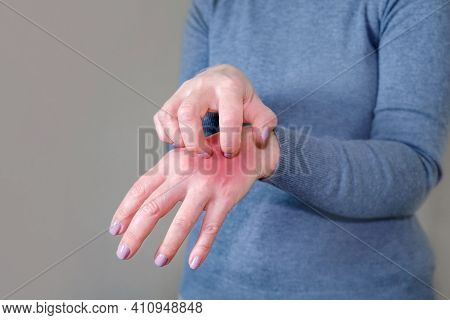 The Girl In The Gray Jumper Scratches Her Hand. Scabies. Inflammation Of The Skin. Disease Of The Sk