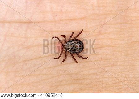 Sucking Tick, Sucking On A Human. Tick On The Skin Background. Dermacentor Reticulatus