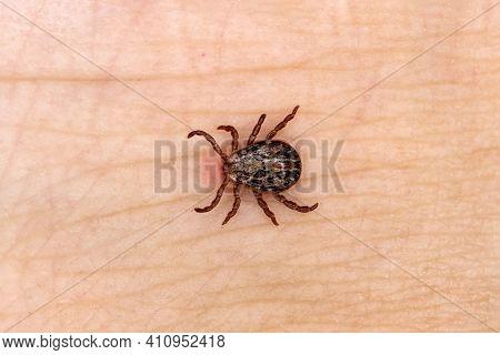 Sucking Tick, Sucking On A Human. Tick On The Skin Background. Dermacentor Reticulatus