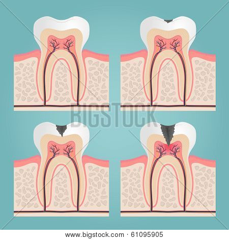tooth anatomy and damage, cut teeth in the gums vector illustration poster