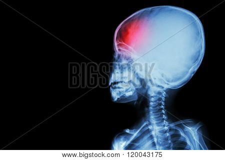 Film X-ray Body Of Child And Headache ( Brain Disease ) ( Isolated )