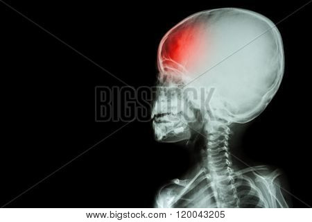 film x-ray body of child and headache ( brain disease ) ( isolated ) poster