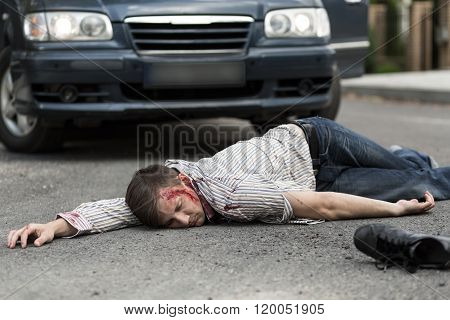Man Hit By A Car