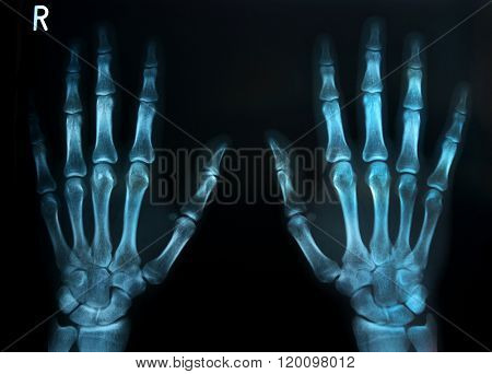 Human Hands X Ray