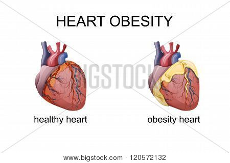 illustration of obesity heart. comparison. cardiology. vector poster