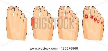 illustration of the various injuries of the feet. inflammation and arthritis