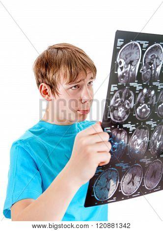 Sad Kid With Tomography