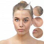 Anti-aging concept. Beautiful woman with problem and clean skin. Aging and youth concept, beauty treatment, cosmetology, lifting. Female face befor and after facial rejuvenation or plastic surgery. poster