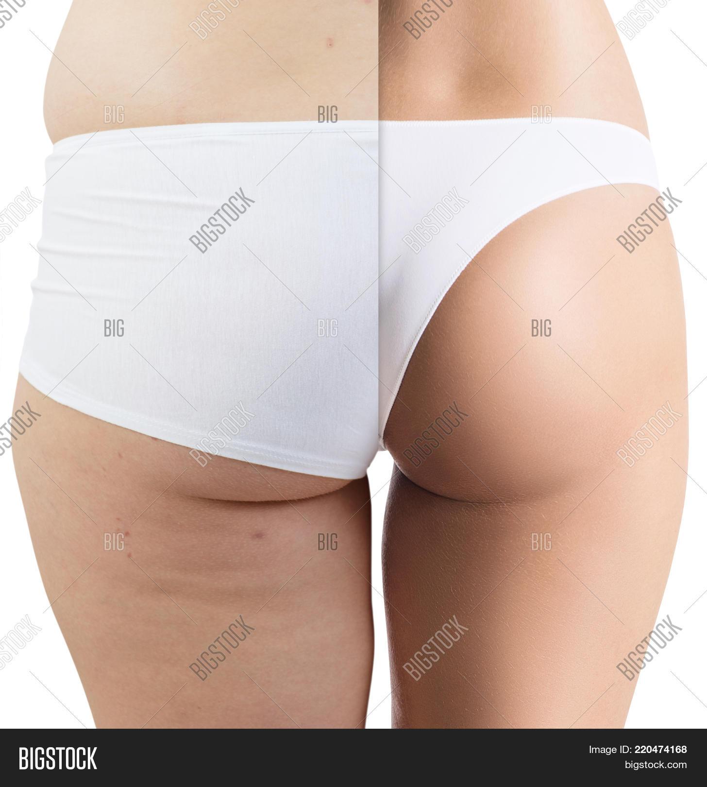 Female Buttocks Before Image Photo Free Trial Bigstock