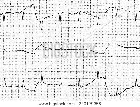 Electrocardiogram test that shows electrical activity of the heart