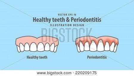 Upper Healthy Teeth & Periodontitis Illustration Vector On Blue Background. Dental Concept.
