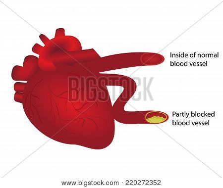Heart with normal and partly blocked blood vessel. Vector illustration