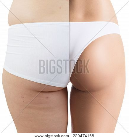 Female buttocks before and after anti-cellulite treatment. Before and after weightloss.