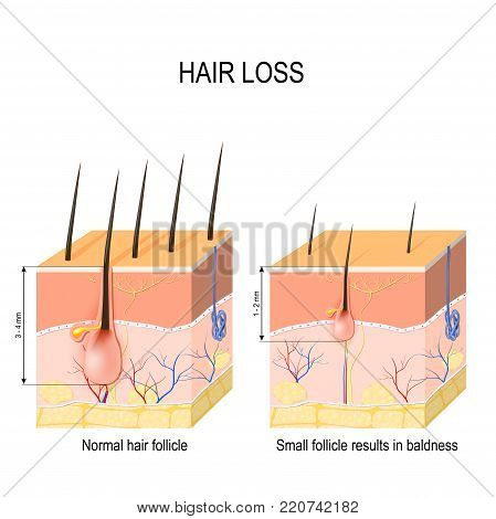 Hair loss (baldness). Normal hair follicle and skin with Alopecia. human skin. Vector illustration