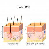 Hair loss (baldness). Normal hair follicle and skin with Alopecia. human skin. Vector illustration poster