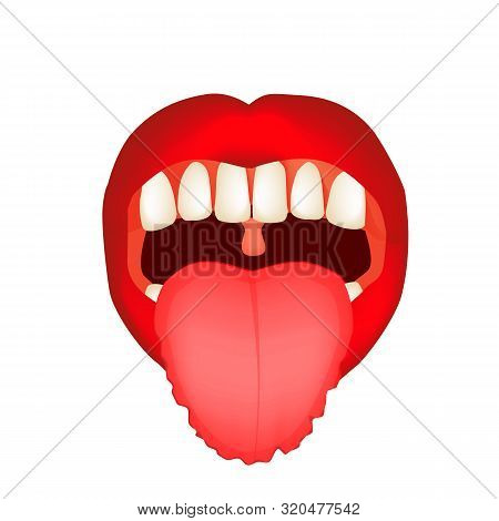 Teeth Imprints On The Tongue. Definition Of A Disease According To Human Tongue. Diagnostics By Tong