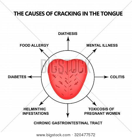 The Causes Of Cracking In The Tongue. Definition Of A Disease According To Human Tongue. Diagnostics