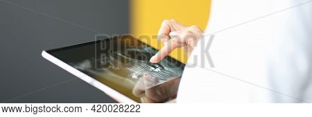 Female Finger On Tablet Showing Human Jaw