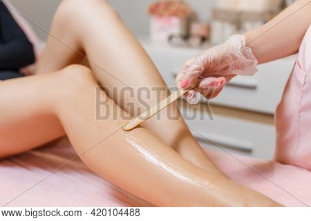 Cosmetologist Covering Woman Legs With Anesthetic Gel During Laser Epilation. Laser Hair Removal