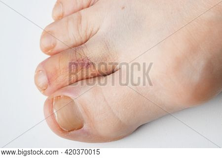 Bruises, Bunions And Broken Toes On White Background, Closeup