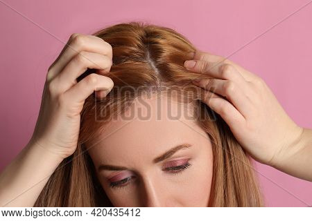 Woman Suffering From Baldness On Pink Background, Closeup