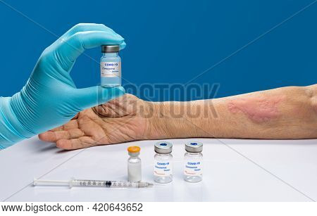 Vaccine Covid 19 Allergies Symptom In Elderly After Vaccination.