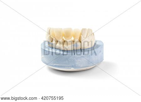 Ceramic crown of a tooth on plaster model, the work of a dental technician, including clipping path