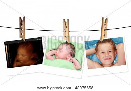 Image of newborn baby like 3D ultrasound and same baby 7 days old and 10 years old.