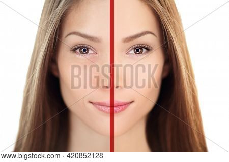Beauty anti-aging skincare cosmetic treatment before after comparison of Asian woman' s face skin, wrinkles, under eye dark circle bags and lines. Red line separating sides.