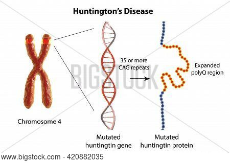 Molecular Genesis Of Huntington's Disease, 3d Illustration. Expansion Of The Cag Trinucleotide Seque