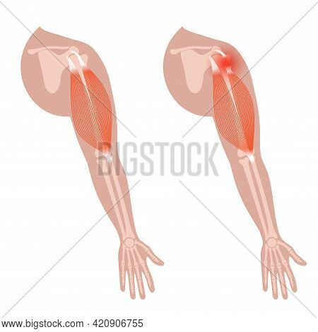 Biceps Tear Concept. Trauma In Human Arms. Pain And Disease In Human Muscular System. Bones And Join