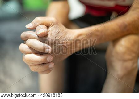 The Hand Of Old Man With The Wrinkled Hand And Bruised, For Healthy Concept.