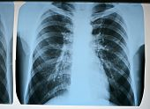 focus on center. pneumonia test scanning modern x-rays, radiography details poster