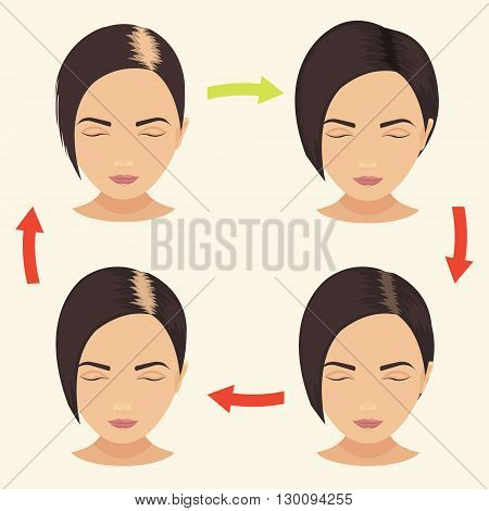 Female hair loss stages set. Woman before and after hair treatment and hair transplantation. Female pattern baldness. Implantation of hair. Vector illustration.