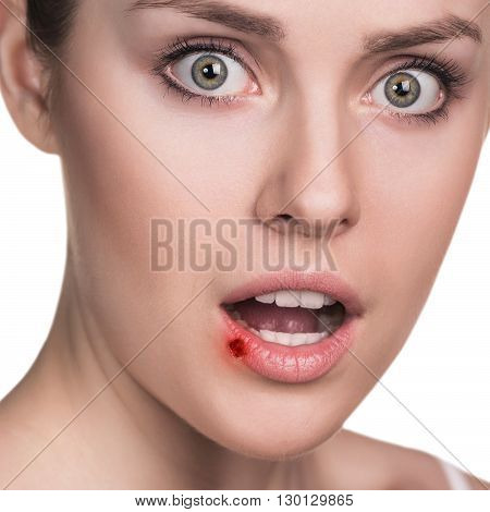 Herpes on the female lips isolated ower white background