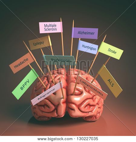 Image of a brain on the table with various nameplates of various diseases that can affect our brain. It's a 3D image with nameplates stuck by toothpick. Clipping path included.