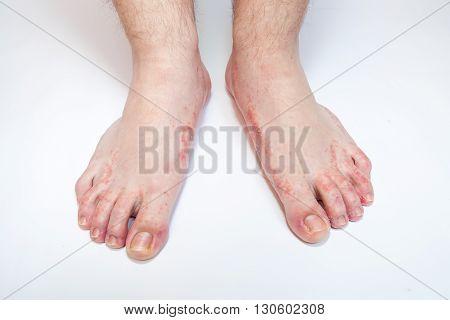 dermatitis on foot athlete's foot disease problem