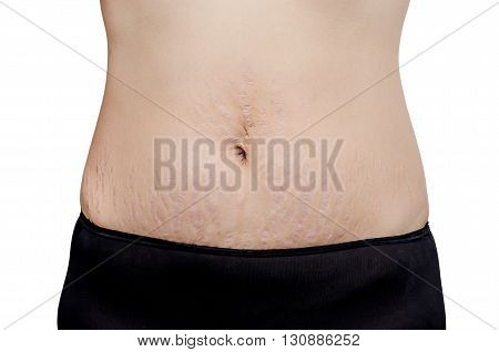 Asian woman showing stretch marks on her tummy skin
