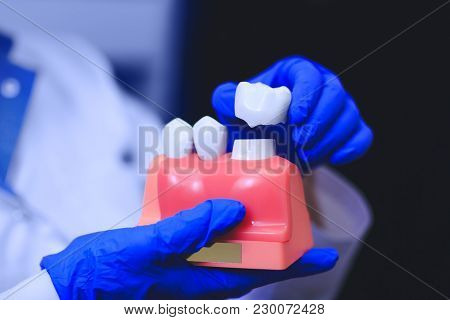 Dental Implant In The Hands Of Real Doctor - Model Of Teeth In Closeup. Tooth Restoration. Installat