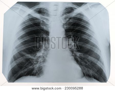 X-ray Of A Human Chest Or Lungs Radiography Shot, Medical Technology And Roentgen Clinic Diagnostic